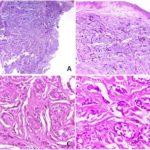 Metástasis cutánea de adenocarcinoma mamario. Presentación de un caso