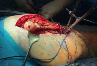 Foto 3. Resección en bloque del tumor