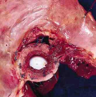 endocarditis-etiologia-causas