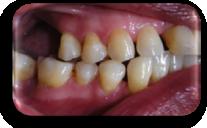 enfermedad-periodontal-irritacion-mucosa