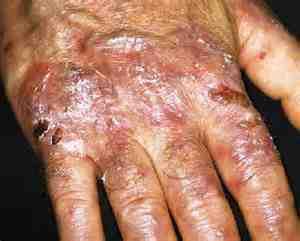 epidermolisis-ampollosa