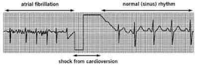 fibrilacion-auricular-cardioversion