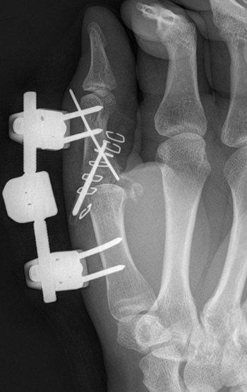 fractura-conminuta-base-falange