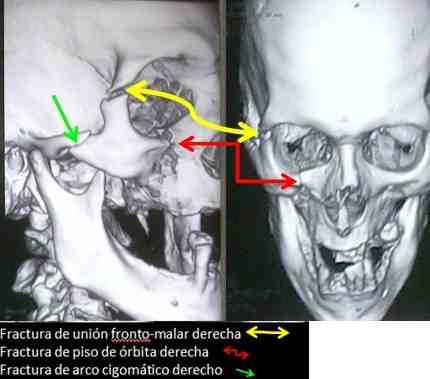 fractura-traumatismo-facial