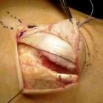 Luxación recidivante tendón tibial posterior. A propósito de un caso