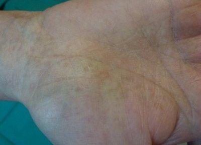 liquen-escleroatrofico-lesiones-atroficas