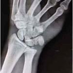 luxacion-carpometacarpiana-radiografia