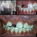 Odontoma compuesto: reporte de un caso