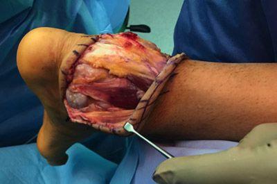 Foto 3. Imagen intraoperatoria de la resección. Se pude apreciar el nervio sural y en la zona medial los vasos y nervio del tibial posterior.