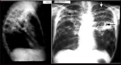 radiografia-torax-tuberculosis