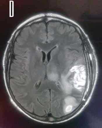RMN-glioblastoma-cerebral
