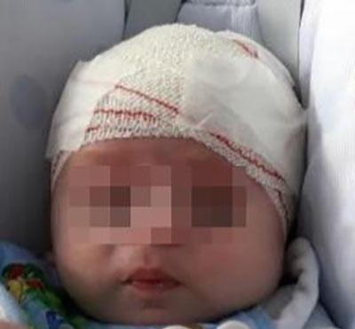 Foto 4: Paciente con capellina.