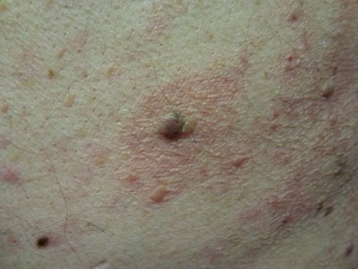 dermatitis-inflamatoria-con-queratosis-seborreica