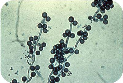 hifas-Candida-albicans