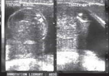 mielomeningocele-disrafismo-columna-lumbar