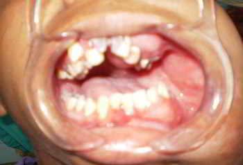 neurofibromatosis-maloclusion-dentaria