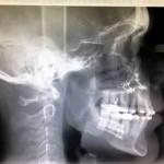 resultados-cirugia-ortognatica