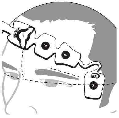colocacion-sensor-BIS