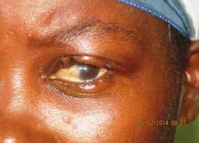 tracoma-postoperatorio