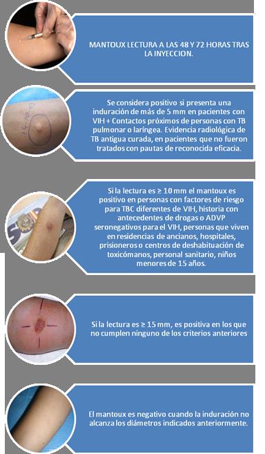 tuberculosis-Mantoux