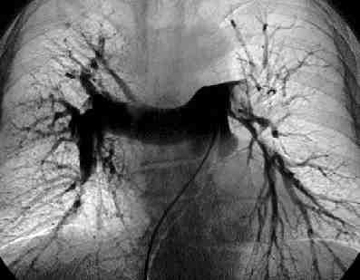 TEP-angiografia-venosa-sustraccion-digital