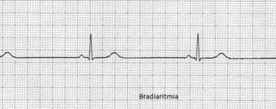 bradiarritmia