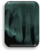 enfermedad-periodontal-perdida-osea