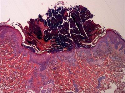 epidermis-tejido-inflamatorio-necrotico