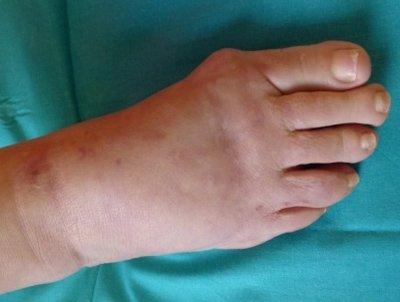 lesiones-cicatriciales-linfedema-residual