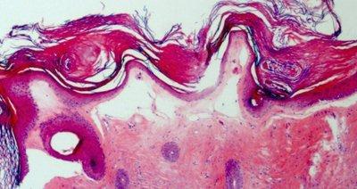 Liquen escleroso atrofica