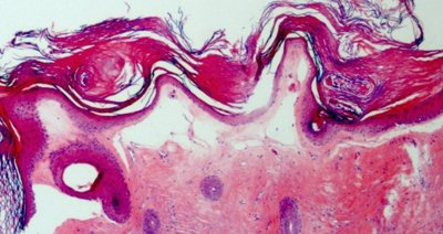 liquen-escleroatrofico-anatomia-patologica