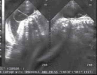 mielomeningocele-imagen-sacular-tabiques