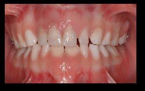 5-osteogenesis-imperfecta