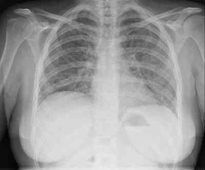 Neumonia-Pneumocystis-Jirovecii-tras-tratmiento