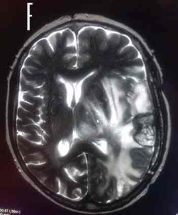 RMN-glioblastoma-progresion
