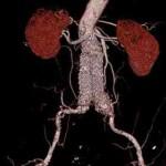 Tratamiento endovascular de los aneurismas de aorta abdominal yuxtarrenal sintomático mediante ¨técnica de chimenea¨. Reporte de dos casos