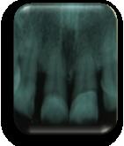enfermedad-periodontal-defectos-intraoseos
