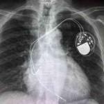 Calidad y seguridad al paciente en la sala de radiología intervencionista de cirugía cardíaca