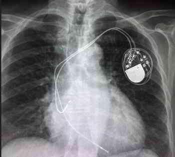marcapasos-cardiaco