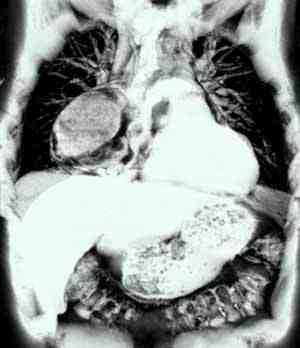 tumor-torax