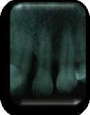enfermedad-periodontal-defectos-intraoseos-verticales