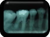enfermedad-periodontal-defectos-intraoseos-molares