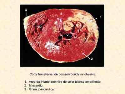 Diagnóstico del infarto agudo del miocardio. - Página 11 de 11