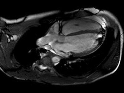RMN pericarditis derrame pericardico.jpg