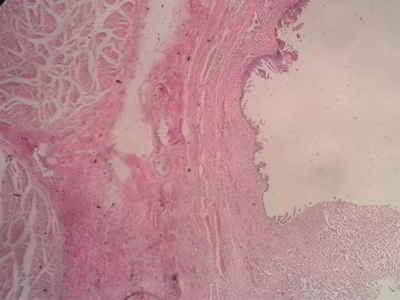 adenocarcinoma-anatomia-patologica