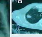 Carcinoma de pulmón, forma atípica de presentación. Caso clínico