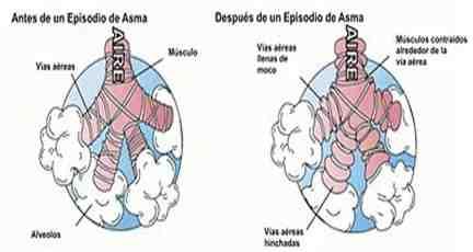antes-despues-episodio-asma