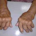 Artritis Reumatoide,  presentación de caso