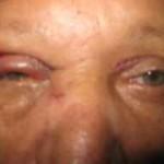 Blefaroplastia. Presentación de Caso