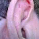 Condrodermatitis nodular de hélix: lesión ulcerada en hélix crónica